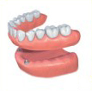 Phuket Denture Implants